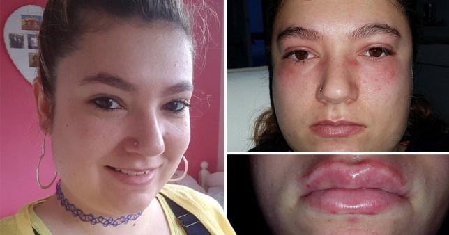 Leah Watts, 28, 'thought she was going to die' after having an allergic reaction