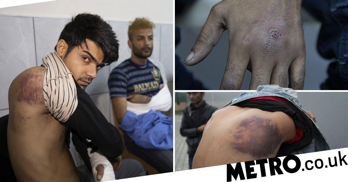 Refugees 'tortured and beaten by Greek soldiers' before being returned to Turkey