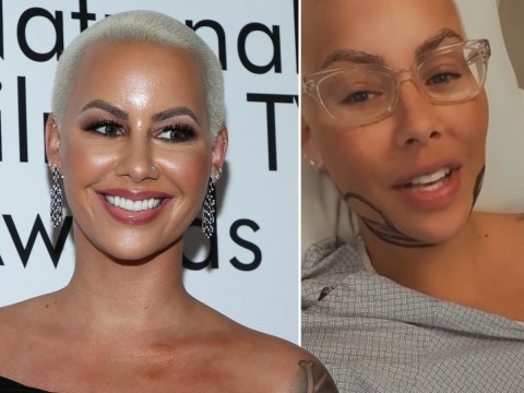 Amber Rose undergoes full-body liposuction six weeks after giving birth