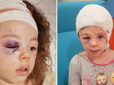 Girl, 7, left with exposed skull after German Shepherd attacked her