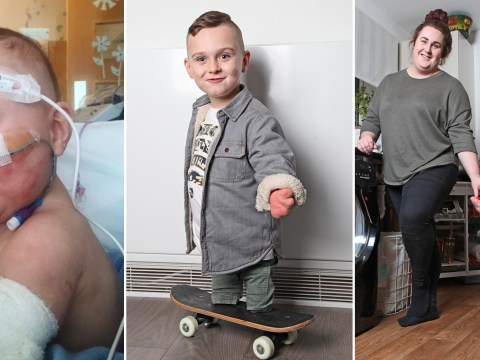 Boy, 4, learns to skateboard after losing legs to meningitis