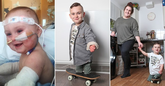 Taylor Lewis scoots around on his skateboard to get his independence