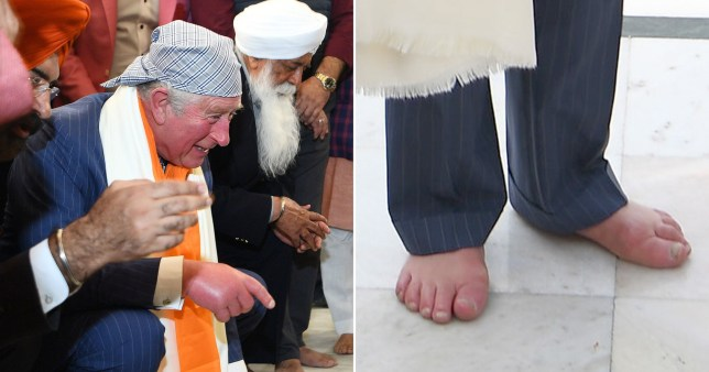 Why does have Prince Charles have such swollen hands and feet?