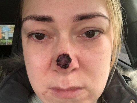 'Harmless' spot on mum's nose turned out to be skin cancer eating away at flesh