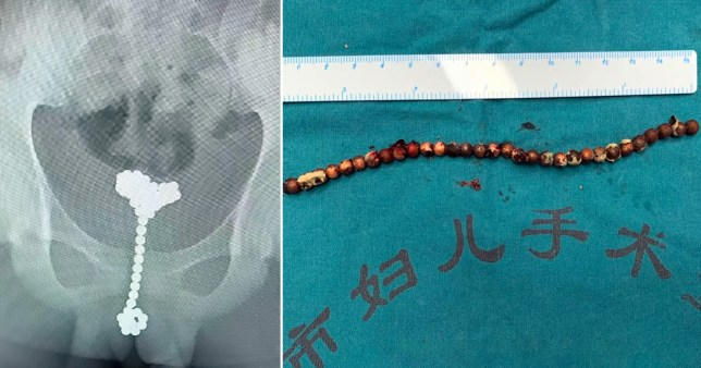 X-ray of magnetic toy 'Buckyballs' suck up the urethra and bladder of a boy from Wuhan, China