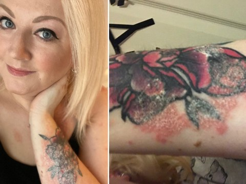 Woman horrified as severe psoriasis destroys her tattoo