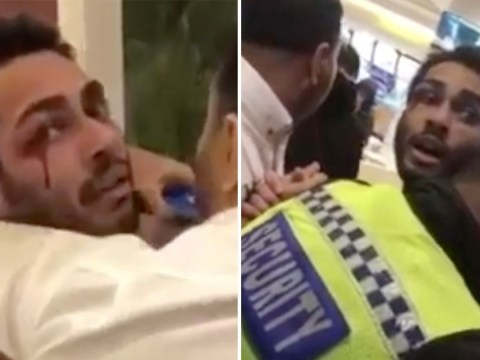 Blood pours from McDonald's customer's eye after fighting with staff