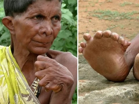 Woman born with 12 fingers and 20 toes branded a witch by her neighbours