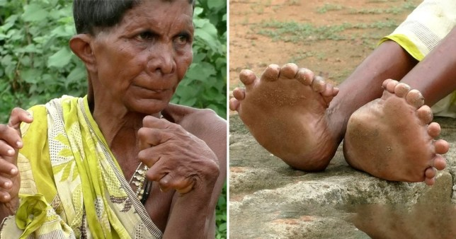 Kumar Nayak, 63, has lived with the abnormality since birth and has never been able to afford treatment.