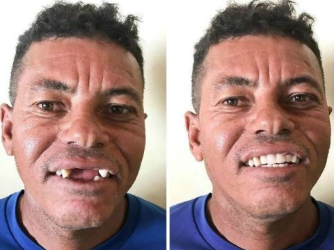 Dentist travels around Brazil treating poor people's teeth for free