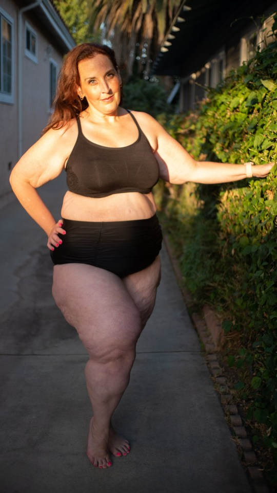 Jennifer who has Lipedema picture in her underwear