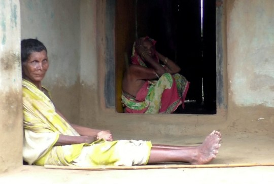 A woman has told how her neighbours think she is a witch - because she was born with 19 toes and 12 fingers. See SWNS story SWOCtoes. Kumar Nayak, 63, from the Ganjam district in Odisha, India, who was born with the defect, has no money to fund her treatment and is forced to stay inside her residence due to her more than usual number of fingers and feet which are reminiscent to that of an elephant.