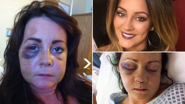 Katie bravely shared photos of her injuries