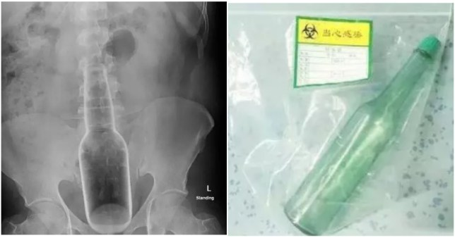 Bottle gobbled up by man's anus when he 'tried to scratch an itch'