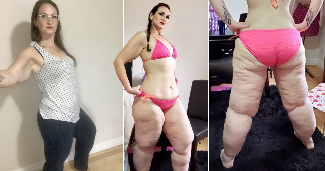 Mum is desperate to get surgery to remove 20 litres of fat from her legs as lipoedema leaves her unable to sit or stand without pain