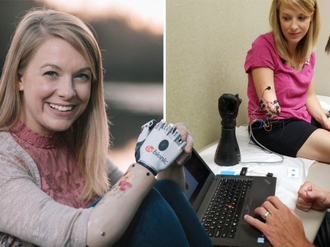 Mum gets new robotic arm after hers was ripped off by a shark while she was on holiday