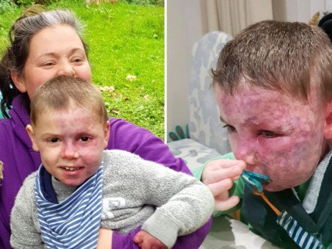 Mum is raising awareness of port wine stains after people mistook her son's for a burn