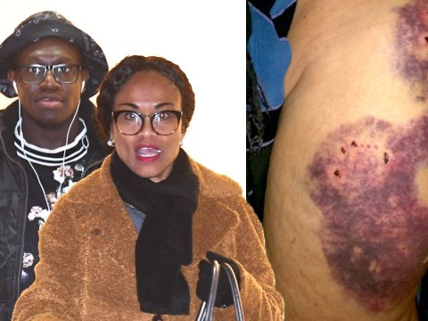 Gruesome injuries made by KSI's brother Deji's dog revealed as Tank is ordered to be 'destroyed'