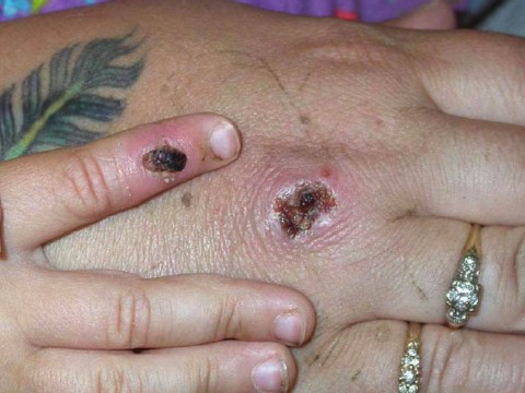 What is monkeypox and when should you see a doctor?