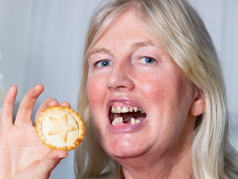 Mum needs teeth for Christmas after swallowing dentures eating a mince pie