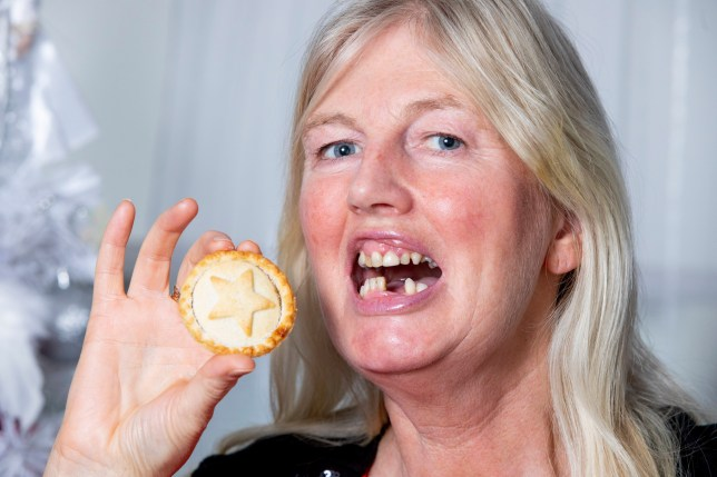 Angela McGill who lost two of her front teeth when eating a mince pie. Dec 6 2019 . See SWNS story SWSYteeth. A mum said 'all she wants for Christmas is her two front teeth' - after accidentally swallowing her dentures while eating a mince pie. Angela McGill, 52, was tucking into the festive snack when she swallowed what she thought was a bit of pastry. Gulping hard, she realised that she'd actually swallowed her partial dentures - two teeth attached to a plastic plate - and started panicking. The caterer went to hospital and an x-ray revealed the plate was stuck half way down her throat.