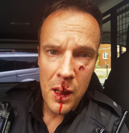 Avon and Somerset Constabulary undated handout photo of PC Andrew Gilbert after he was assaulted by Martin Williams who has been jailed for more than three years at Bristol Crown Court when he filmed himself assaulting two police officers and posted the footage on Facebook. PA Photo. Issue date: Thursday December 19, 2019. Williams, 28, kicked one officer in the face before running up to his colleague and punching him in the face, causing serious facial injuries. See PA story COURTS Assault. Photo credit should read: Avon and Somerset Constabulary/PA Wire NOTE TO EDITORS: This handout photo may only be used in for editorial reporting purposes for the contemporaneous illustration of events, things or the people in the image or facts mentioned in the caption. Reuse of the picture may require further permission from the copyright holder.