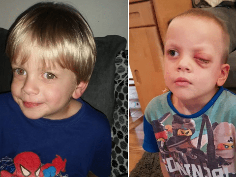 Little boy has eye removed days after Christmas after mum spots rare cancer in photo