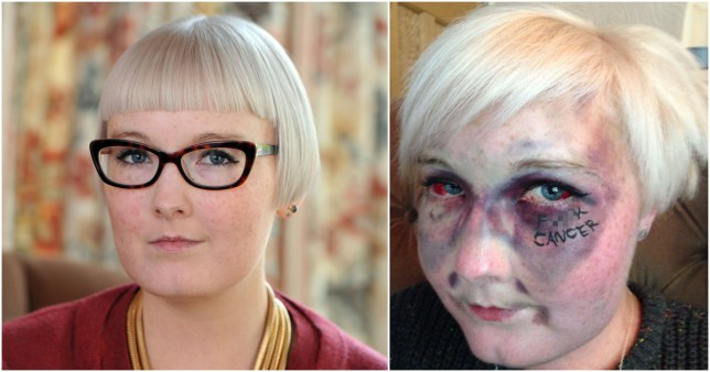 Woman who wrote 'f**k cancer' on her face after being covered in bruises dies aged 28