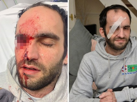 Motorcyclist blinded in one eye after egg thrown from oncoming car