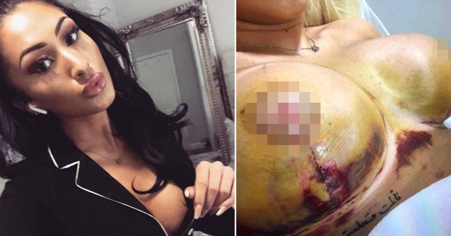 Woman seeking 'insta-perfect' breasts spent £17,000 on five botched boob jobs