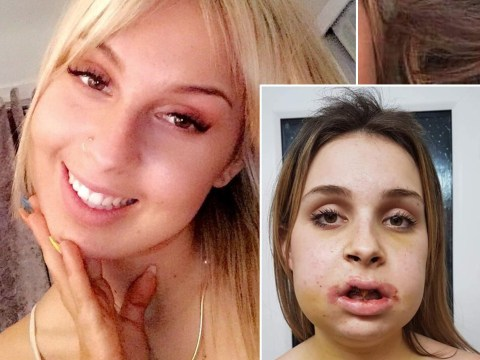 Teen has surgery to cure her 'resting bitch face' after years of bullying