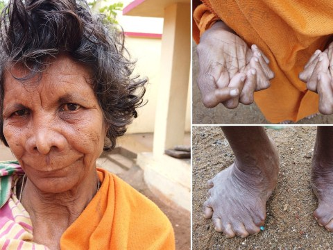 Woman with 31 fingers and toes cruelly branded 'witch' by neighbours