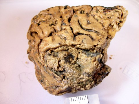 2,600-year-old human brain may hold the key to fighting dementia