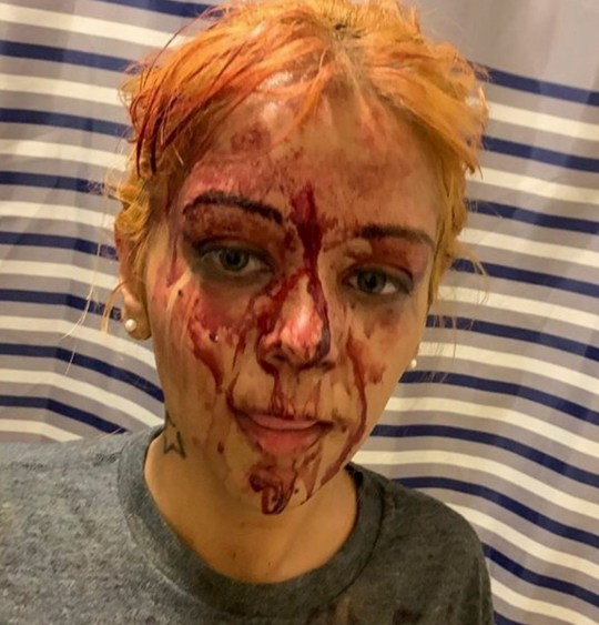 PIC FROM CATERS NEWS - (PICTURED Lizalee after the attack) - A domestic abuse survivor has shared a video of a her ex-partner attacking her after suffering both a miscarriage and brain haemorrhage due to his violent rages. Lizalee Zayas from New Jersey, US, has shared a video of her being violently pushed against a wall, before her attacker can be seen grabbing her hair before repeatedly punching her. Falling to her knees, and hiding her face to protect it, it appears Lizalee only gets free when the couple are interrupted by people coming through one of the other apartment doors - after hearing Lizalees screams. SEE CATERS COPY