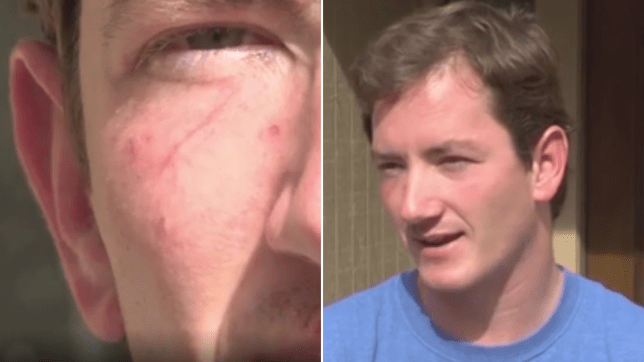 Close-up of Sergei Hall's injuries next to photo of his face