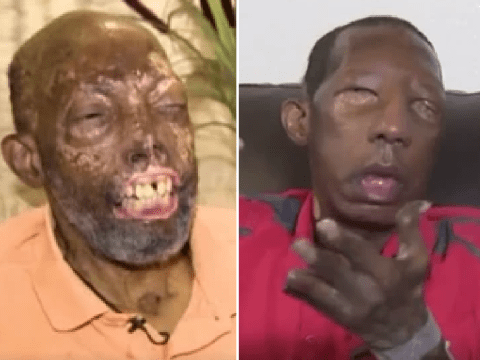 Daughter was 'distraught' to see explosion victim dad, 68, after he had face transplant