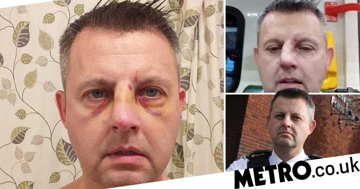 Teen who smashed policeman's head against patio and broke his nose walks free
