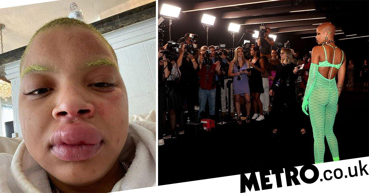 Slick Woods is left with swollen lip after having another seizure