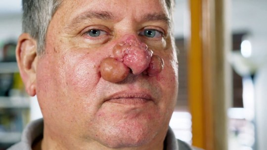 """A desperate patient undergoes a staggering transformation after he visits ???Dr Pimple Popper??? with life-threatening nose growths??? Tony - a 55-year-old resident of Clinton, Tennessee - had two grape-sized growths dangling from his nose, which had smaller bump-like growths on its tip. Tony claimed the lumps are often pus-filled and give off a bad odour that smells """"like rancid fish oil."""" The growths started to develop five years ago when Tony began taking heart medication. Eventually, they become so heavy Tony had trouble breathing because the growths blocked his nose. At night, Tony wore a breathing mask with a strap that kept his nose growths out of the way. To cope with his condition, Tony purposefully kept to himself at his retail job by working on projects in the back warehouse where customers couldn't see his nose. He said:??? This is not the face I want to show in any way. I'm trapped by an awful skin condition."""" During his examination, dermatologist Dr. Sandra Lee diagnosed him with rhinophyma - a type of non-cancerous nose growth. In the operation, Dr Lee numbed Tony's nose with an injection. Then, she used a looped wire tool to burn away the excess skin on the tip of Tony's nose. She removed the large bumps on the side of his nose with a scalpel before she """"shaped"""" Tony's nose using the wire burning tool. Tony said:??? When I look in the mirror I see a normal guy and not this freakish blob of a troll-like nose."""" And he claimed he finally felt ready to take on his impending job promotion. ***** TNI Press Ltd does not hold or assert any Copyright or License in the attached image. Any fees paid to TNI are for TNI???s services only. Such fee does not, nor is it intended to, convey to the user any Copyright or License in the image. By publishing this image, the user expressly agrees to indemnify TNI against any claims, demands, or causes of action arising from, or connected in any way, with the user's publication of the image."""