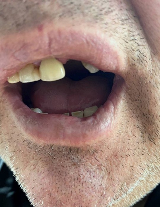 Dated: 13/02/2020 Dog owner Martin Fletcher, from Redcar, who lost his tooth after biting a Rottweiler while it was savagely attacking his pet Jack Russells, Ben and Jerry, leaving one needing over 30 stitches. Picture shows his missing tooth. See story North News