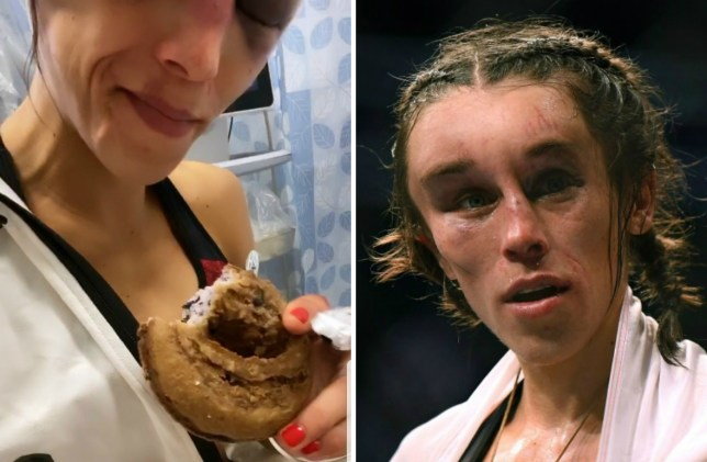 Joanna Jedrzejczyk posts update from hospital after horror hematoma injury at UFC 248