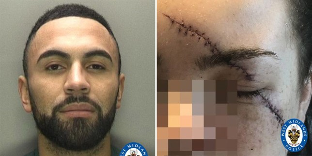 Keelan Burke left his victim needing 26 stitches after he launched the 'grotesque' attack