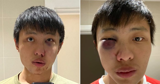 Student Jonathan Mok - who has lived in London for two years - was beaten and told 'I don't want your coronavirus in my country'