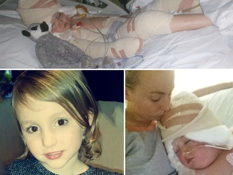 Girl, 5, suffers horrific burns after falling while holding onto deep fat fryer