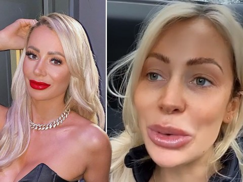Olivia Attwood is fine with her mouth looking like a 'swollen b***hole' – you should be too