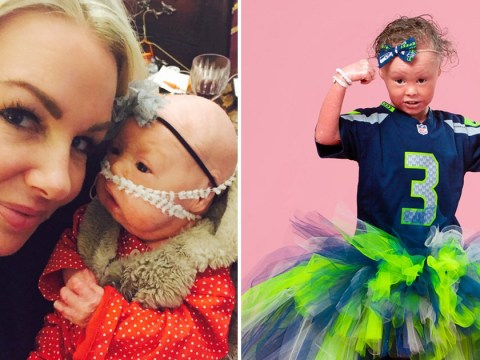 Girl with rare skin condition that makes her red and scaly becomes a model