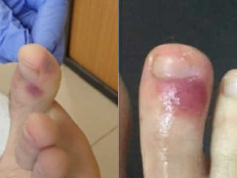Bruises on feet 'could be sign of coronavirus', Spanish doctors claim