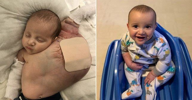 Baby before and after cyst