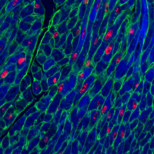 EMBARGOED FOR RELEASE: 14-APR-2020 10.00 BST (05:00 ET) Adult mouse heart muscle cells (blue) after activation of both proteins vital for cell replication. Red shows cells replicating. Green marks cell membrane. Switching on a cancer gene could be the key to mending a broken heart, new research suggests. See NATIONAL story NNheart. The cancer gene could hold the secrets to the world's first curative treatment for heart disease. Cambridge scientists made the discovery while tasked with a separate mission to find out how to turn off a gene that allows cancer to spread. But they made a surprising U-turn when they realised the gene could actually help heart tissue to repair itself. By making the cancer gene overactive and functional in the hearts of mice, this triggered heart cell regeneration. Findings suggest doctors could be able to help the heart to mend itself, even after a heart attack.