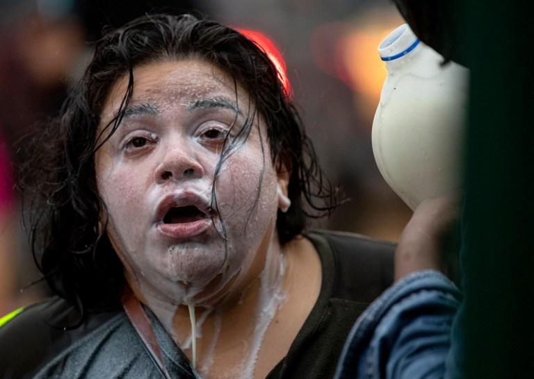 Le lait s'écoule du visage d'un manifestant qui avait été exposé à des grenades à percussion et des gaz lacrymogènes lors de la manifestation de George Floyd à Minneapolis